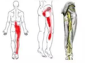 臀部大腿又疼又麻,有时串到小腿?坐骨神经痛该怎